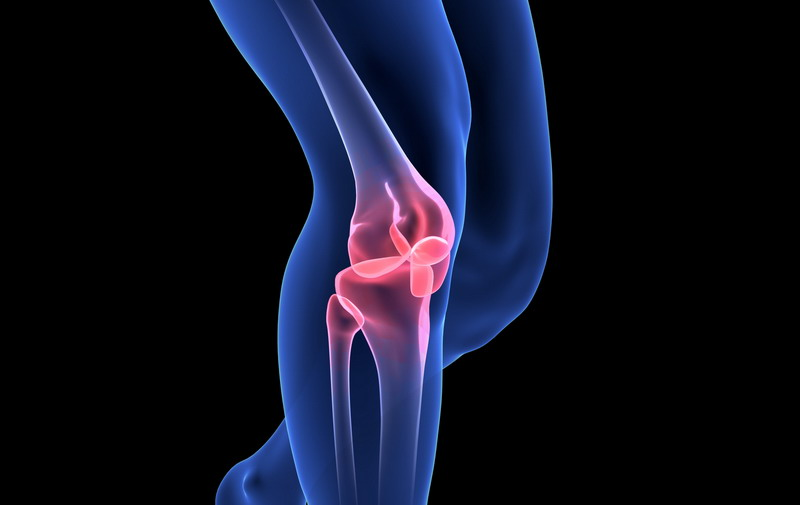 Would You Choose Joint Replacement Over Stem Cell Therapy?
