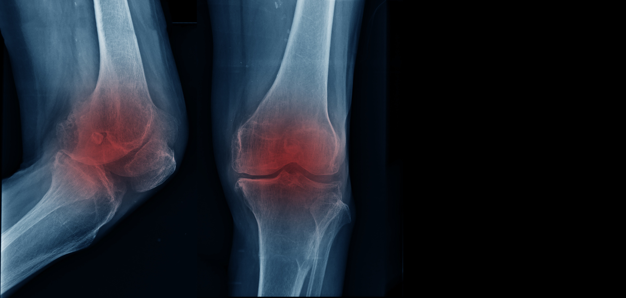 Weighing the Costs of Stem Cell Therapy for Osteoarthritis