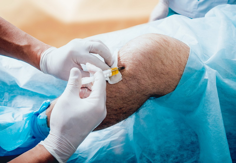 3 Reasons to Consider Adding PRP Therapy to Your Practice